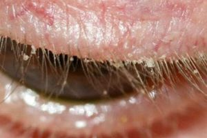 eye lid with blepharitis gritty deposits