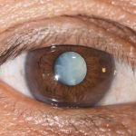 brown eye with cataract showing in pupil