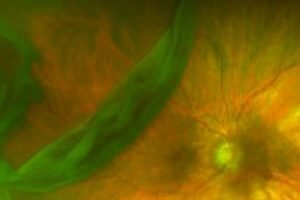 optos image showing a large retinal tear and detachment with floaters
