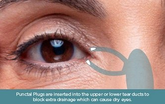 location of punctum plugs used in the treatment of dry eye