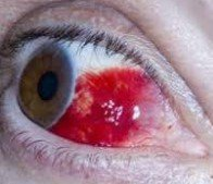 red eye subconjunctival haemorrhage
