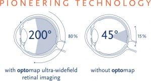 comparison of retinal image using optos vs normal retinal camera