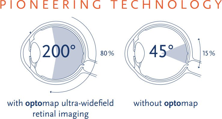 Red Eye and Retinal Imaging