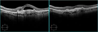 wet-macular-changes-showing-intra-retinal-fluid