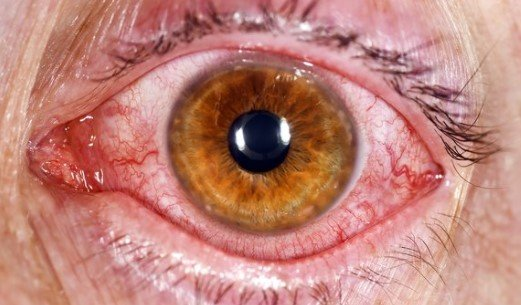 conjuctivitis pink eye without yellow discharge