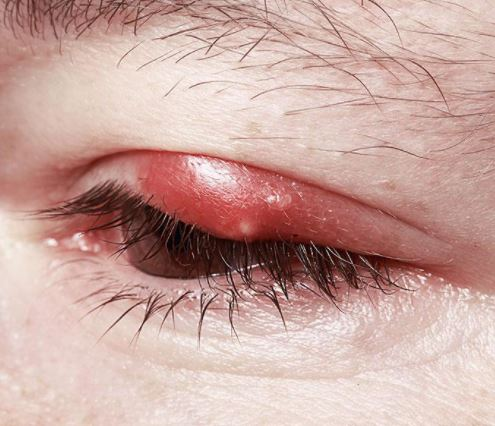 Read more about the article Sore eye lids