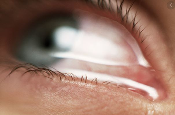 Read more about the article Understanding Your Watery Eyes: Causes and Solutions