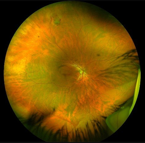 ultra wide optos image for detection of peripheral retinal posterior vitreous detachments