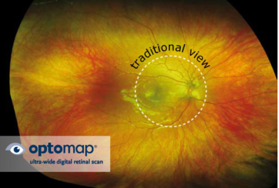 Read more about the article Eye Floaters: Their Causes and When to See an Optometrist