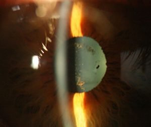 slit lamp image pigment on the anterior lens capsule