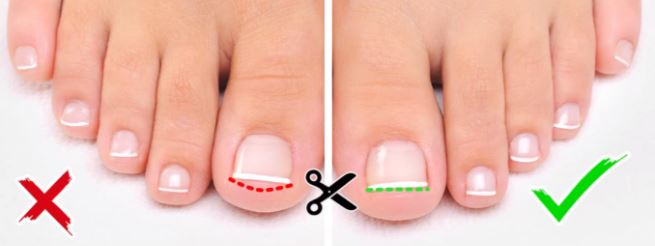 toe nail care and how to cut the nails