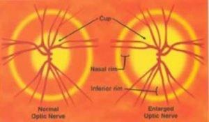 eye nerve showing glaucoma damage vs a normal nerve