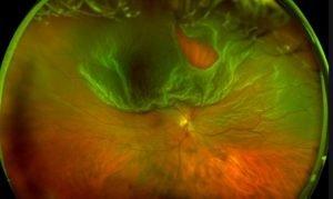 retinal tear superior fundus