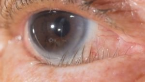 trichiasis in an older eye