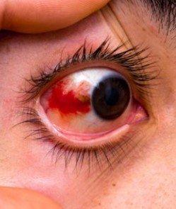 subconjunctival haemorrhage red eye