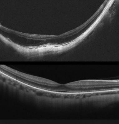 staphyloma nearsighted eye