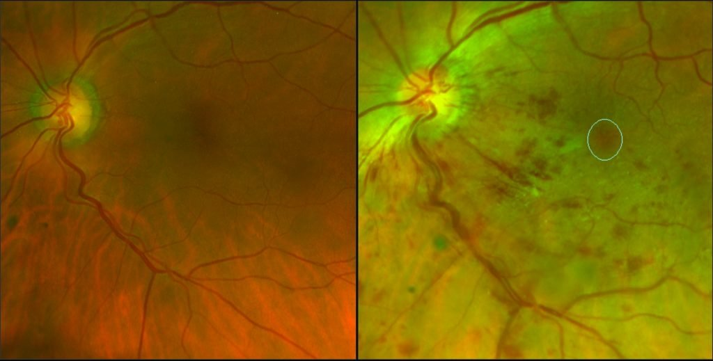 normal and branch vein occlusion left eye