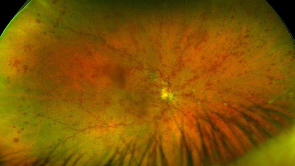 Retinal vein occlusion due to high blood pressure