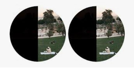 left field of vision loss after a stroke